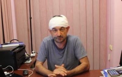 Під Одесою побили головного редактора газети