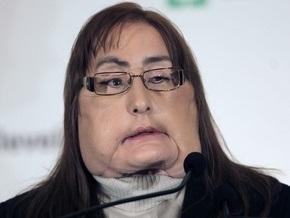 Первая американка с пересаженным лицом вышла в свет