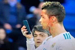 Роналду розбили обличчя в матчі з Депортіво