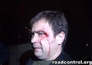 Дорожный контроль: В Киеве неизвестные, которых вызвали гаишники, до крови избили журналиста