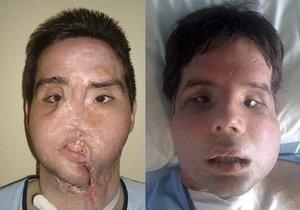 Испанец, которому впервые полностью пересадили лицо, предстал перед журналистами