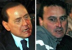 Напавший на Берлускони миланец переведен в больницу для душевнобольных