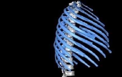 Ученые выяснили, как ходили и дышали неандертальцы