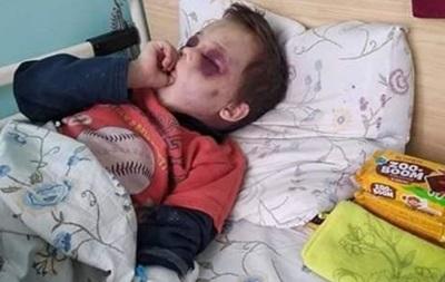 В Винницкой области с побоями госпитализирован шестилетний ребенок