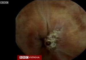 Трансляція наживо зі шлунка людини