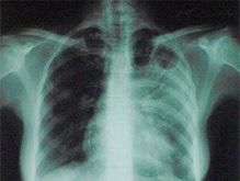 В Виннице открыта лаборатория по диагностированию туберкулеза