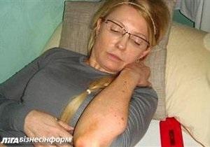 В интернет попали фото гематом Тимошенко