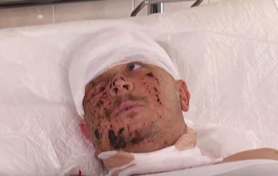 Боєць, що вижив, розповів про обстріл КрАЗу під Гранітним