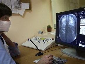 Ученые: Вирус гриппа в Украине мутировал. Он сжигает легкие