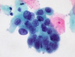 Рак простаты будут лечить с помощью кори