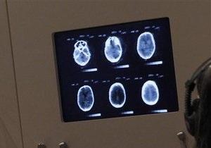 В мозге человека нашли центр чувства собственного превосходства