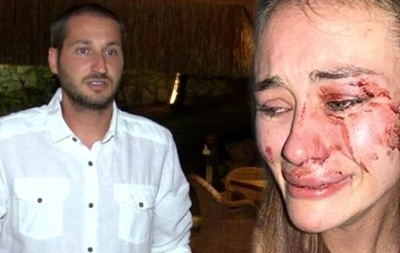 Напад на українську модель в Туреччині: господар пляжу заявив про наклеп