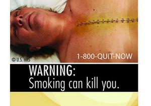 Фотогалерея: Если есть в кармане пачка. Американцы выбрали устрашающие изображения об опасностях курения