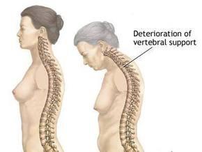 Чем опасен остеопороз и как с ним бороться - советы врача