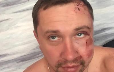 У Житомирі невідомі побили видавця місцевої газети