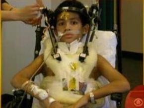 В США врачи спасли мальчика, голова которого отделилась от тела