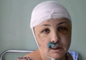 Апелляционный суд оставил под стражей подозреваемого в изнасиловании во Врадиевке Полищука