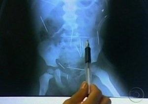 В теле бразильского мальчика врачи нашли полсотни игл