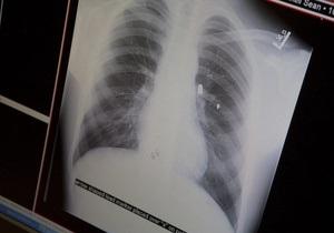 Британке пересадили легкие курильщицы с 30-летним стажем