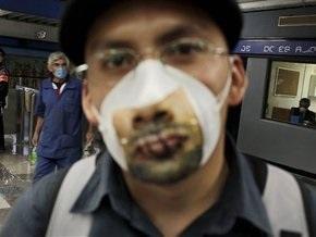 Число заболевших гриппом А/Н1N1в Мексике выросло до 473 человек