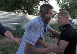 Выбиты зубы, сломаны носы: в России жестоко избили экоактивистов