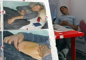 Минздрав: Тимошенко встретилась с немецкими врачами и согласилась лечиться в больнице