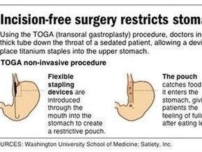 Хирурги США и Европы предложили уменьшать желудок через рот