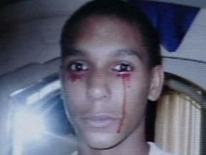 В США офтальмолог попробует вылечить подростка от кровавых слез