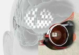 В Австралии прошли испытания вживленного человеку бионического глаза