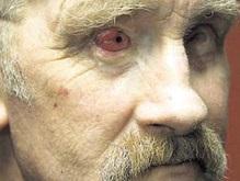 Ирландцу вернули зрение с помощью пересаженного в глазницу зуба
