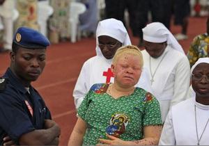 В Африке участились случаи нападений на альбиносов