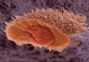 Ученые расшифровали генетический код рака