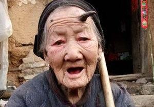 У 101-летней китаянки вырос рог