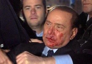 Фотогалерея: Атака на Берлускони. Премьеру разбили лицо и сломали нос