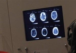 Клетки мозга могут жить в два раза дольше, чем сам организм - ученый
