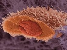 Создан искусственный вирус, убивающий раковые клетки