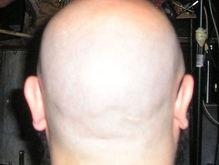 Ученые научились выращивать волосы