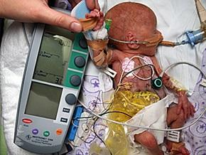Новорожденного ребенка весом в полкилограмма подключили к кардиостимулятору