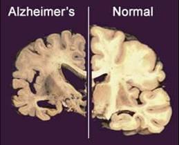 В США начались испытания стимулятора мозга против болезни Альцгеймера