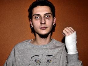 В Киеве избили арт-критика Ульянова. Братство заявило о провокации