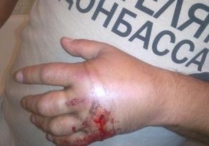 Милиция ничего не знает о ранении мужчины в футболке Спасибо жителям Донбасса