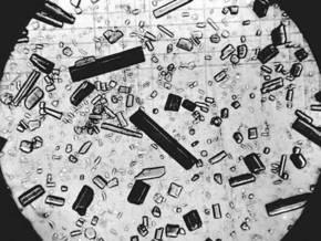 В США арестована депрессивная лаборантка, нарочно уничтожившая дорогие образцы