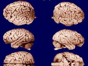 Обнаружен самый древний мозг Британии