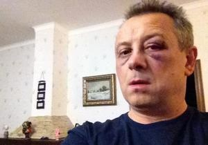 Избитый под Киевом депутат от партии УДАР: Жить буду, сейчас со мной все ок
