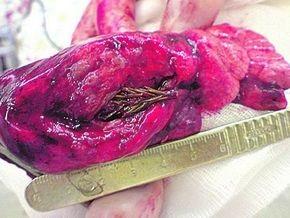 У россиянина в легком вместо опухоли нашли проросшую еловую ветку