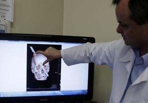 Бразилец с головой, пробитой арматурой, выжил