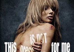 В новой социальной рекламе Светлана Лобода предстанет в синяках и ссадинах