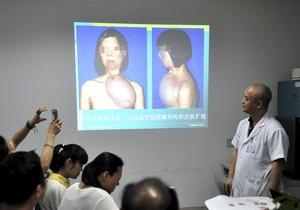 Пластическая операция - пересадка лица - 17-летней китаянке вырастили лицо на груди