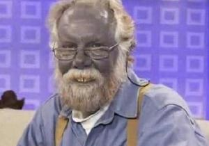 Скончался американец, известный своей кожей синего цвета