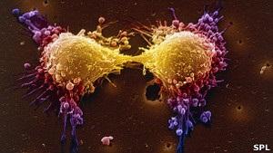 Науковці: рак може згубити Латинську Америку